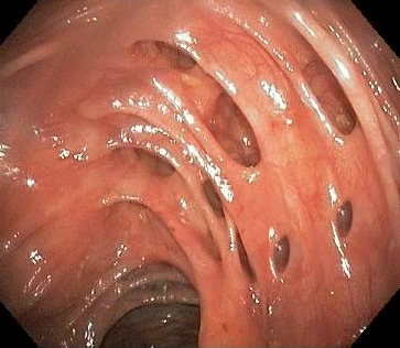 Diverticulos-endoscopia